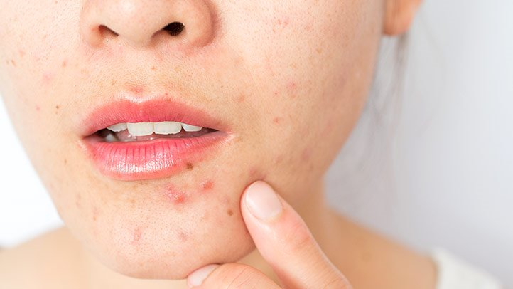 Foods which cause Acne Problems